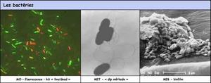 Some applications of microscopy use for bacteria