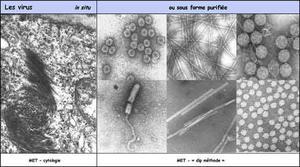Quelques applications de la microscopie pour les virus