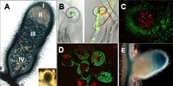 Étude de l'interaction symbiotique Légumineuses– Rhizobium